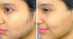 how-to-remove-unwanted-facial-hairs